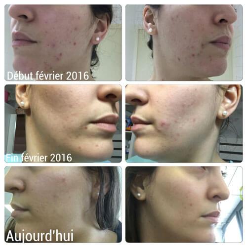 Routine naturelle acné